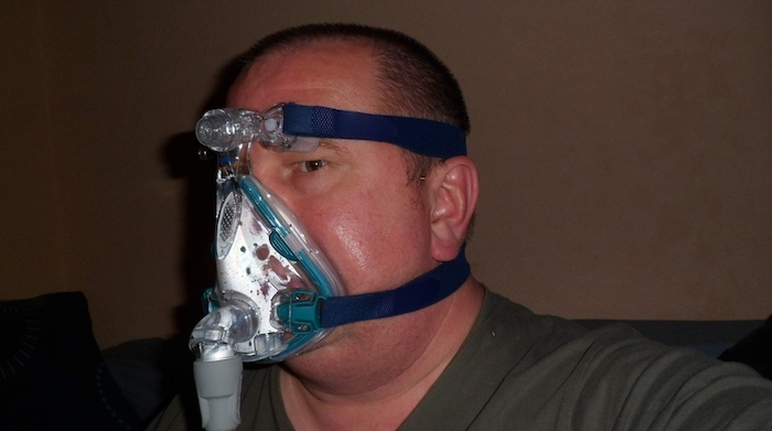 CPAP device is most popular still for treating Sleep Apnea