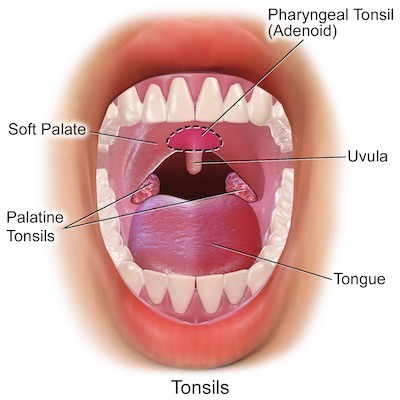 Uvulopalatopharyngoplasty treatment for Sleep Apnea