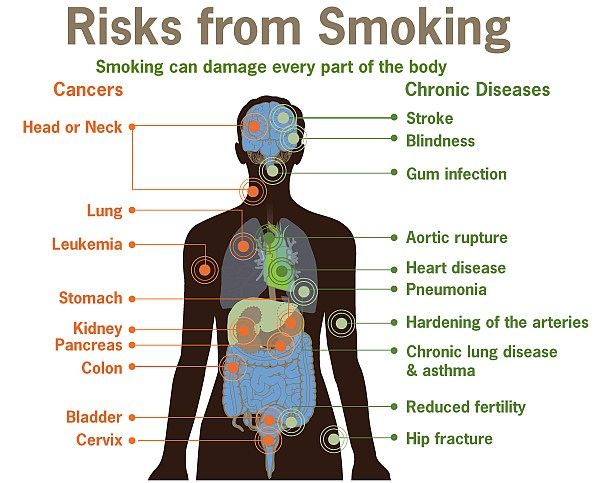 Risks of Smoking