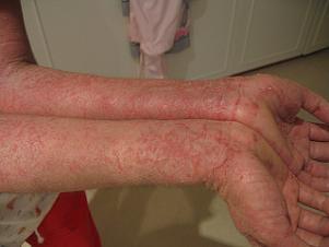 Eczema Trigger Factors