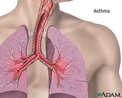 asthma remedy