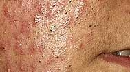 Great Acne Fighting Tips