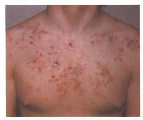 Proven Chest Acne Treatments
