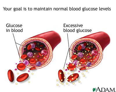 2 Diabetes: Causes, Symptoms and Treatment