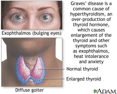 Natural Thyroid Storm Treatments