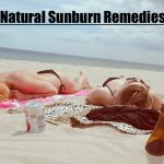 Great Natural Sunburn Remedies To Stop The Pain