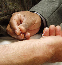 Acupuncture as Alternative Therapy
