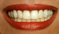 Prevent Gum Disease with Fish Oil