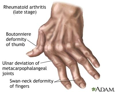 Rheumatoid Arthritis - Treatment and New Research