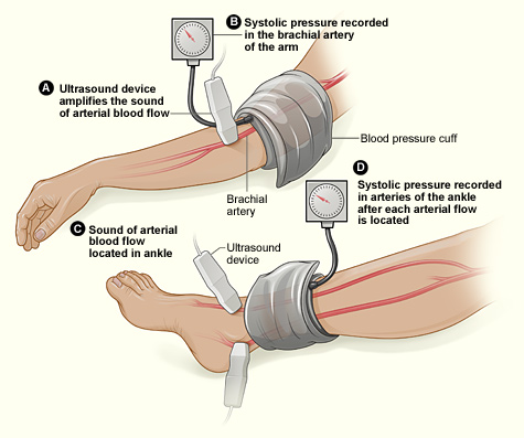 Why Does Blood Pressure Change Throughout The Day