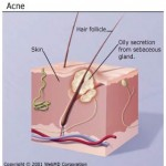 How to Treat Severe Acne