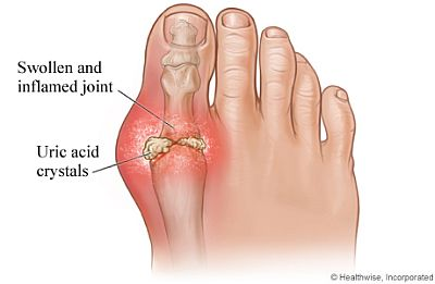 Gout Home Remedies: Can They Help?