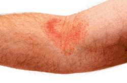 Dealing with Eczema Embarrassment