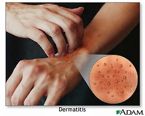 Eczema and Lifestyle Changes