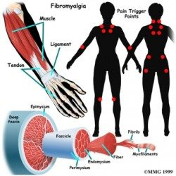 Treating Fibromyalgia Naturally