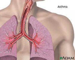 Natural Asthma Remedy