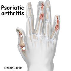 Arthritis Pain Control