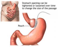The Risks of Gastric Bypass Surgery