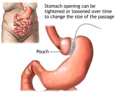 gastric bypass surgery