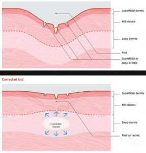 Fixing Flawed Skin