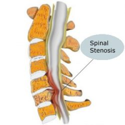 Spinal Stenosis Treatment: Is It Effective?