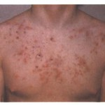 Getting Rid of Chest Acne