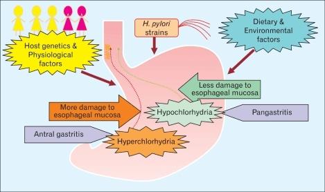 Dangers of Acid Reflux Disease