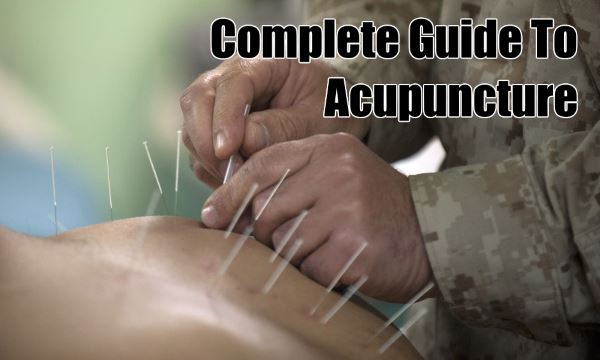 Complete Guide To Acupuncture